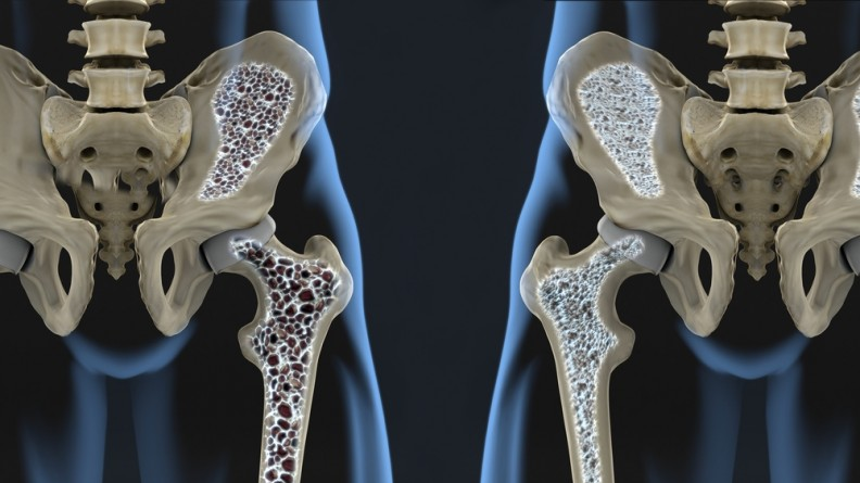 Nutrition and Osteoporosis: What You Should Know